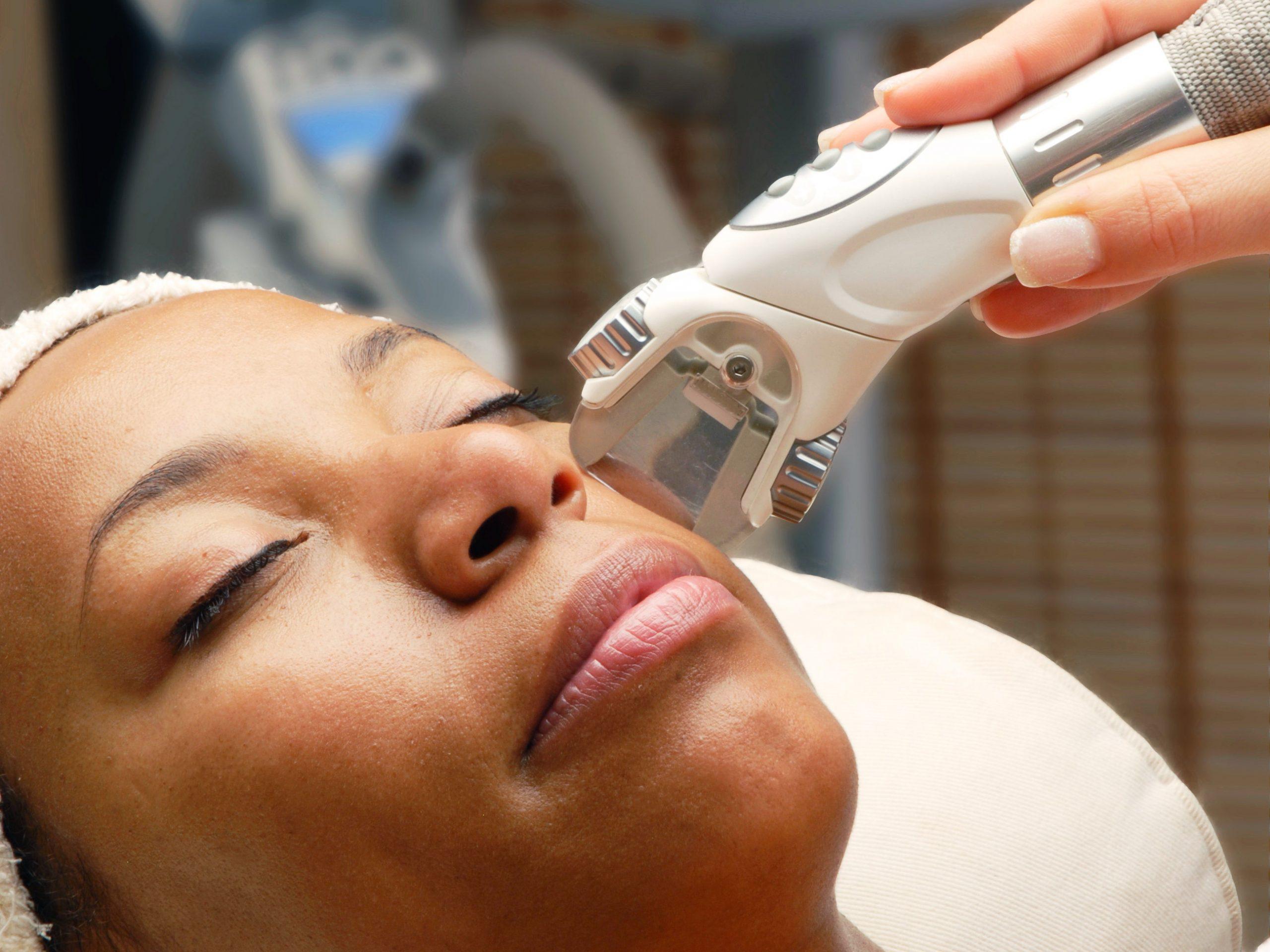 Face Laser Treatment